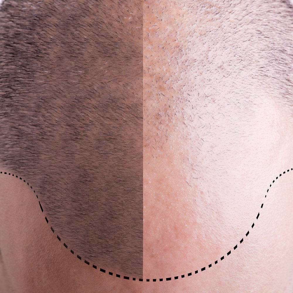 Haartransplantation_shutterstock_271183676